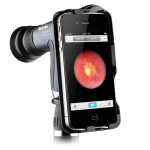 Welch Allyn iExaminer Pan Optic iPhone